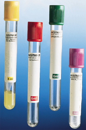 Vac.tube w/Lithium Heparin - Green Top ( 6 mL.)